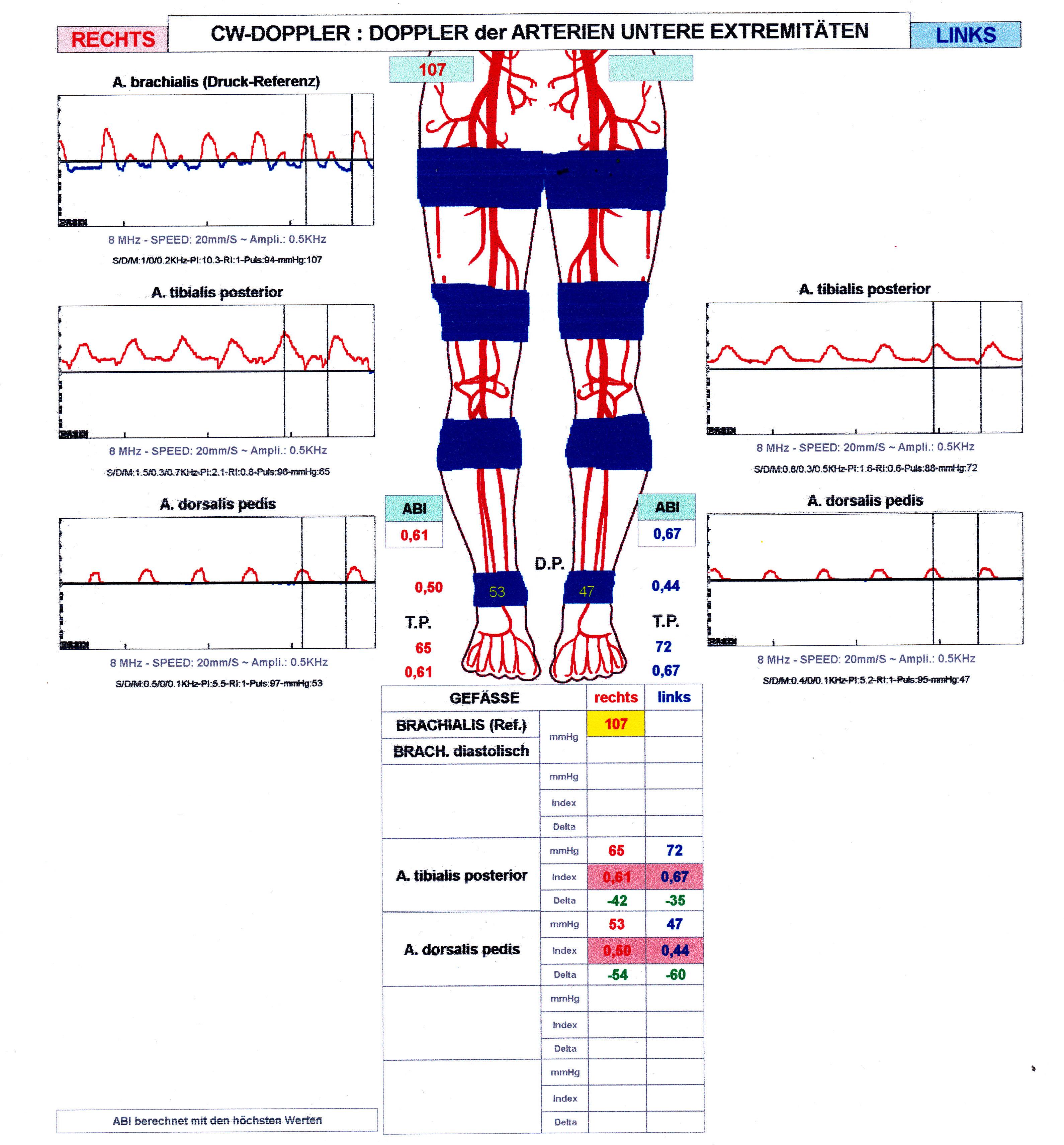 Praxis-Kauschke.de | Arterielle Druckmessung mit der Dopplersonde